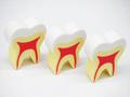 歯形消しゴム(説明用)3個入