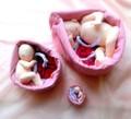 3、6、9ヵ月胎児 ◆推奨セット◆