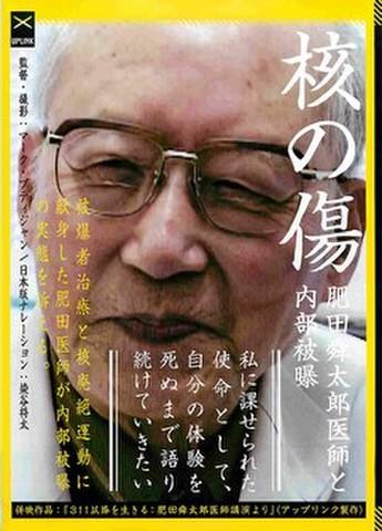 映画チラシ: 核の傷 肥田舜太郎医師と内部被爆